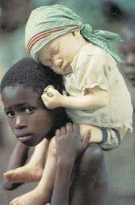 Albino child